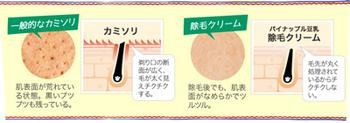 カミソリでむだ毛を剃るのと除毛クリームでむだ毛処理する場合の比較