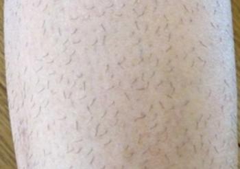 剃った後伸びてきて見苦しくなったむだ毛